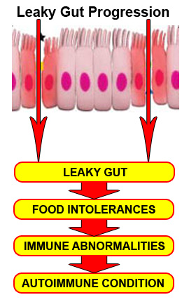 A diagram showing leaky gut progression: from leaky gut, to food sensitivities, to immune abnormalities, to an autoimmune condition. The sooner the better in terms of healing a leaky gut.