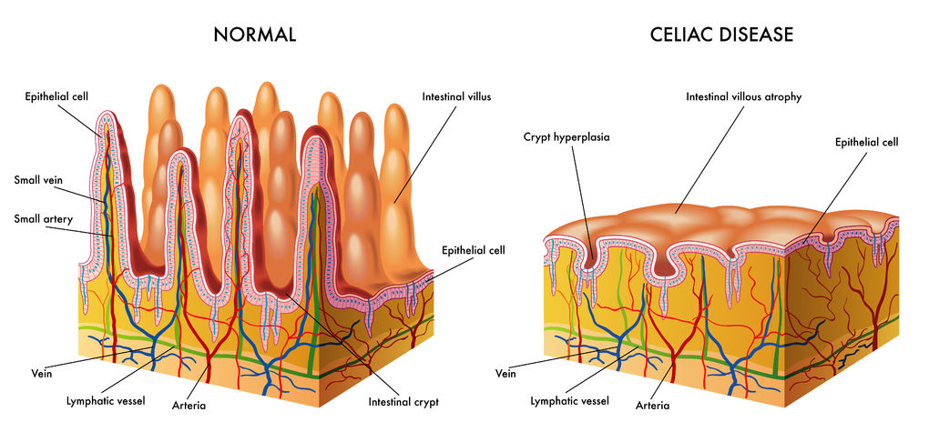 Diagram showing normal intestinal villi compared to villous atrophy, which is characteristic of celiac disease. A test called an intestinal biopsy can reveal whether villous atrophy is present.